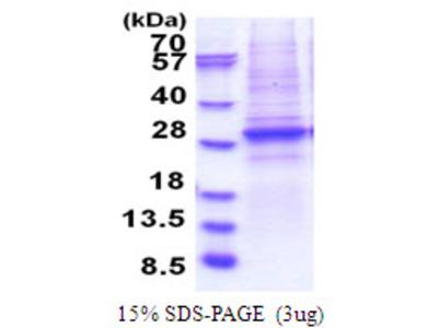 Human SMARCA4 Recombinant Protein