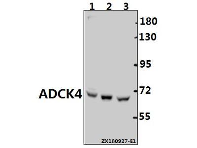 Anti-ADCK4 (G55) COQ8B Antibody