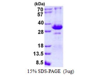 Human TIRAP Recombinant Protein