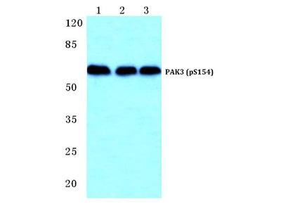 Anti-PAK3 (phospho-S154) Antibody