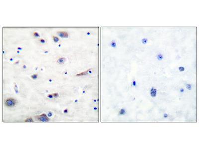 Anti-Phospho-SH-PTP2 (Y580) PTPN11 Antibody