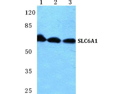 Anti-SLC6A1 Antibody