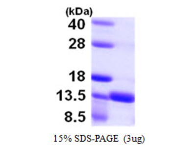 Human S100A16 Recombinant Protein