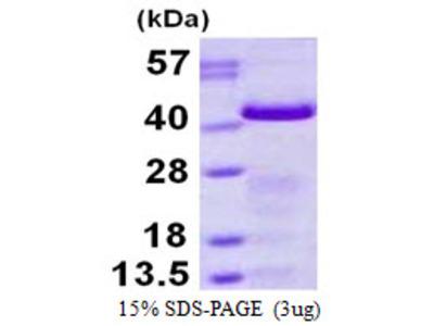 Human GAP43 Recombinant Protein