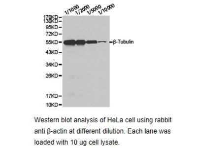 Anti-CRHBP Antibody