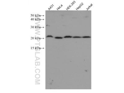 TAF12 Monoclonal Antibody