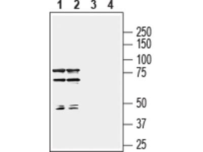 Semaphorin 7A/SEMA7A (extracellular) Blocking Peptide
