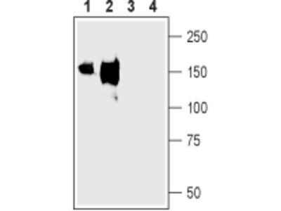 NKCC2/SLC12A1 (extracellular) Blocking Peptide