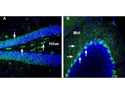 GLUT3 (extracellular) Blocking Peptide