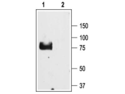 ENaC gamma/SCNN1G (extracellular) Blocking Peptide