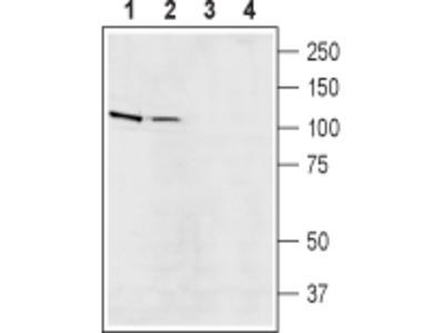 Na+/H+ Exchanger 5/NHE-5 Blocking Peptide