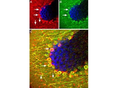 Somatostatin Receptor Type 5 (extracellular) Blocking Peptide