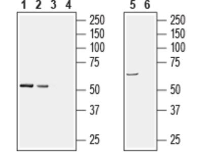 Anti-PACSIN1 Antibody