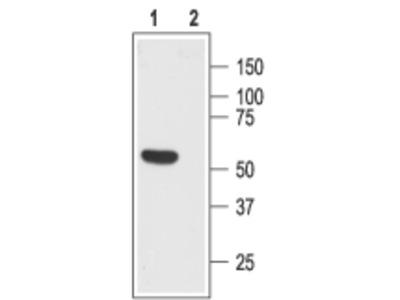 Somatostatin Receptor Type 1 (extracellular) Blocking Peptide