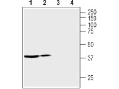 Vasopressin V2 Receptor/AVPR2 Blocking Peptide