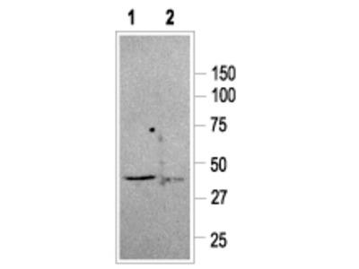 Somatostatin Receptor Type 2 Blocking Peptide