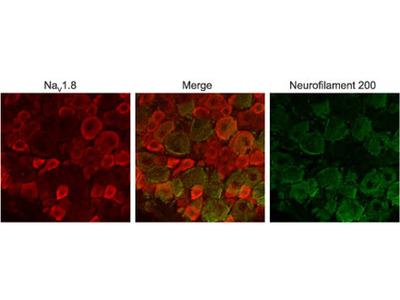 Nav1.8/SCN10A Blocking Peptide