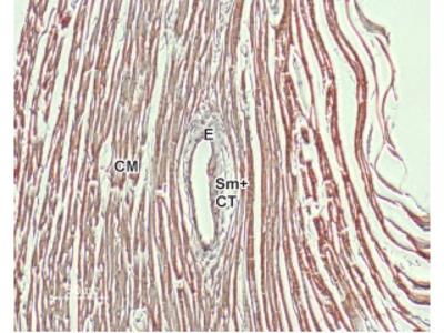 NCX1/SLC8A1 Blocking Peptide