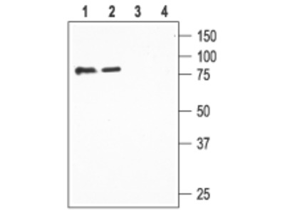 ENaC β/SCNN1B (extracellular) Blocking Peptide