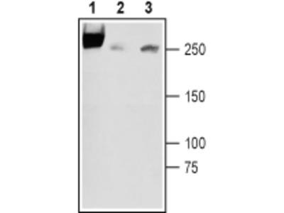 SCN3A/Nav1.3 (extracellular) Blocking Peptide