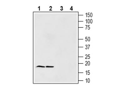 Gamma-Synuclein Blocking Peptide