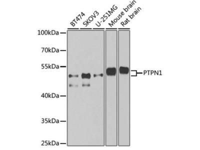 PTP1B/PTPN1 Antibody