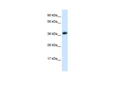 CHRNA1 antibody - C-terminal region (AVARP13084_P050)