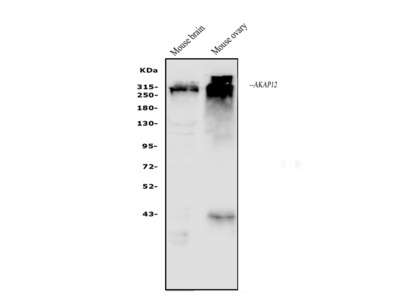 Anti-AKAP12 Antibody Picoband