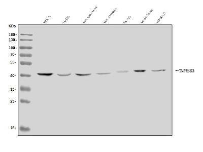 Anti-TMPRSS3 Antibody