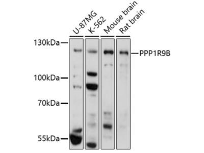 PPP1R9B/Spinophilin Antibody