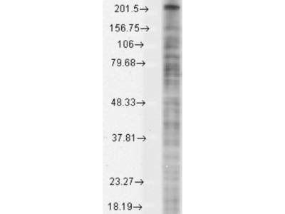 Mouse Monoclonal Nav1.8 Antibody