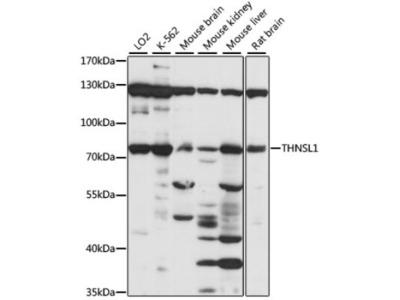 THNSL1 Antibody