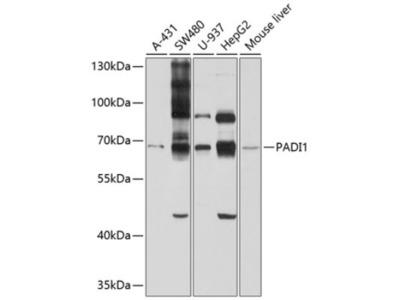 PADI1 Antibody