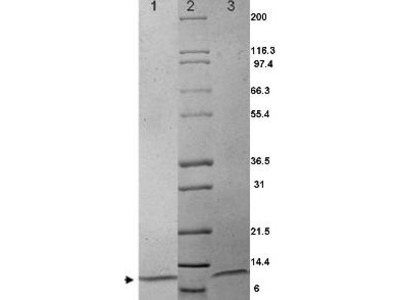 MIP-1α Human Recombinant Protein