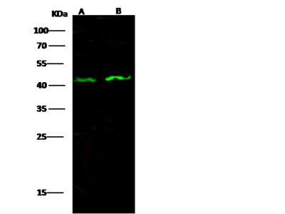 Anti-CXCR5 antibody