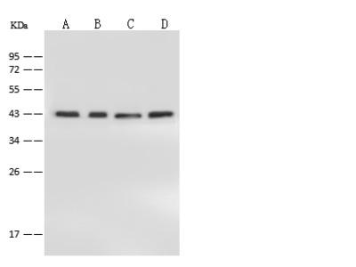 Anti-NIPP1 antibody