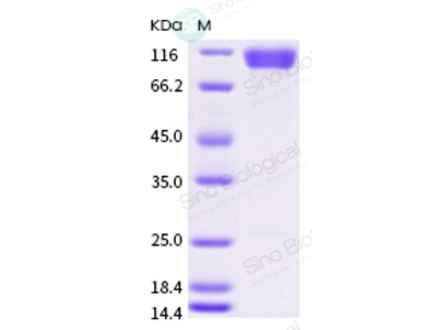 Human SIGLEC10 Protein (ECD, mFc Tag)