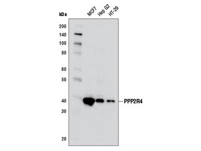 PPP2R4 (5G3) Mouse mAb