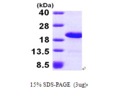 LSM1 Recombinant Protein
