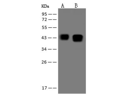 ATXN3 Antibody, Rabbit PAb, Antigen Affinity Purified