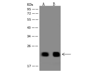 TMEM92 Antibody, Rabbit PAb, Antigen Affinity Purified
