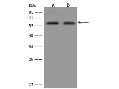 PALMD Antibody, Rabbit PAb, Antigen Affinity Purified