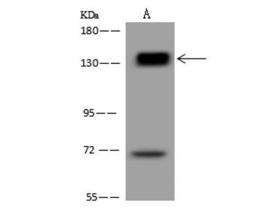 PALLD Antibody, Rabbit PAb, Antigen Affinity Purified