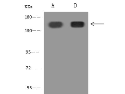 Thrombospondin-1 / TSP1 / THBS1 Antibody, Rabbit PAb, Antigen Affinity Purified