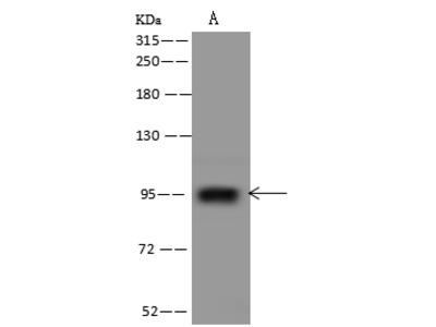 PTCHD4 Antibody, Rabbit PAb, Antigen Affinity Purified