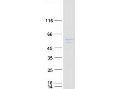 AKT3 Human Recombinant Protein