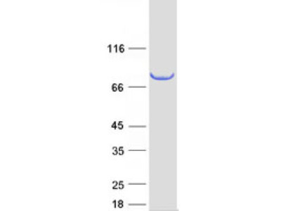 SCEL Human Recombinant Protein