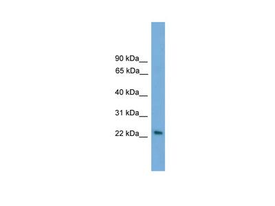 RAB15 antibody - middle region (ARP55918_P050)