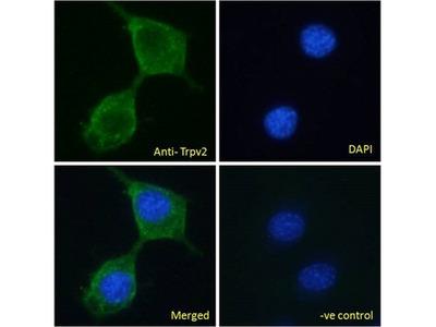 VRL1 / TRPV2 Polyclonal Antibody