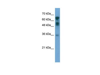 CXorf67 antibody - middle region (ARP55962_P050)